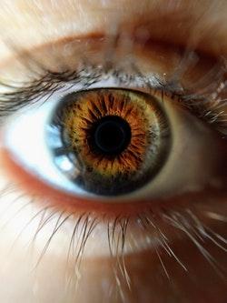 A lézeres látásjavítás után